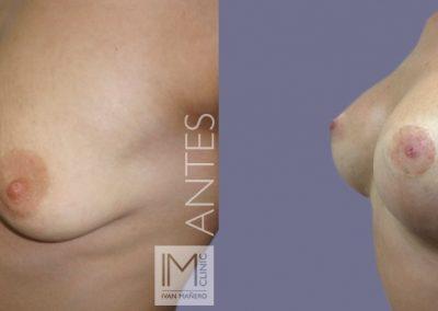 lifting-mamas-con-protesis-4c