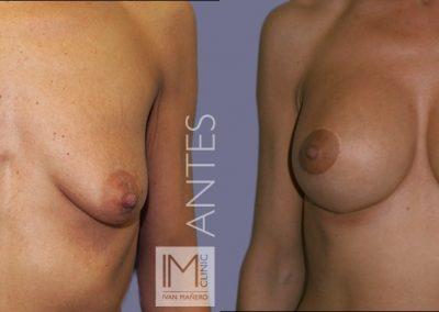lifting-mamas-con-protesis-6a
