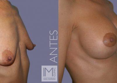 lifting-mamas-con-protesis-6b