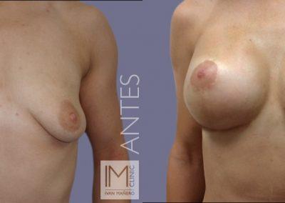 lifting-mamas-con-protesis-4a