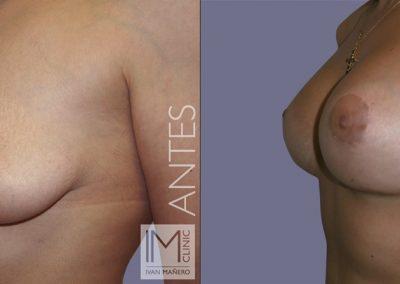 lifting-mamas-con-protesis-8c