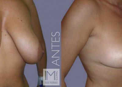 lifting-mamas-sin-protesis-2a-antes