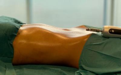 LIPOSUCCIÓN ASISTIDA POR VIBRACIÓN (PAL): La tecnología que esculpe cuerpos en alta definición